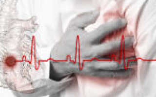 Можно ли работать после инфаркта: нормы